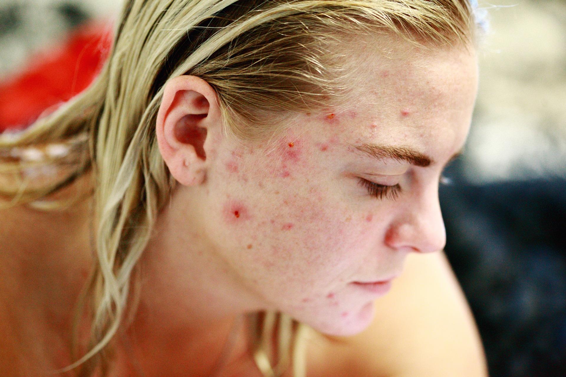 Problemas com acne: causas e como tratar