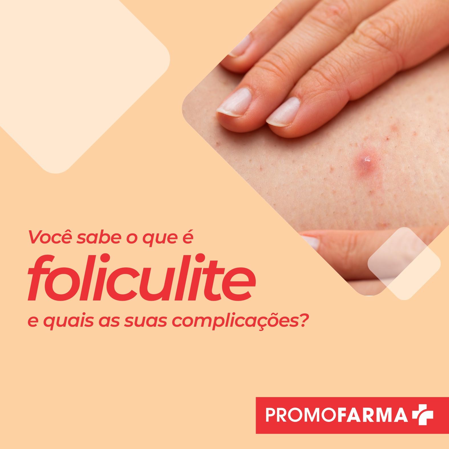 Você sabe o que é foliculite e quais as suas complicações?